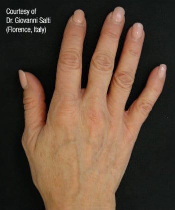 Before And After Gallery | Hands
