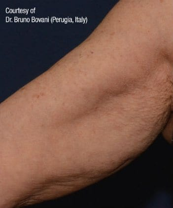 Inner Arms | Before and After Gallery